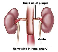 Illustration of Renal Artery
