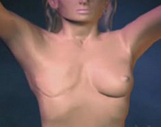 Watch breast reconstruction animation