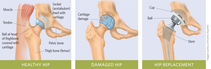 Hip Replacement Surgery >> A Closer Look Hip Replacement Surgery Newsroom Barnes