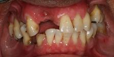 Before full mouth reconstruction using dental implants